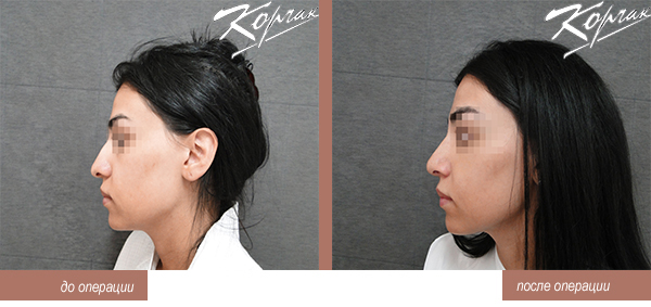 Пластическая хирургия г москва