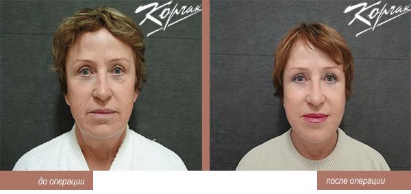 pacient 5-1